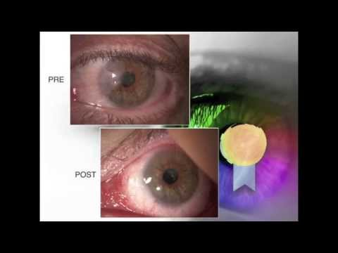 Il flusso di sangue nel recupero della prostata