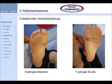 Ob man beim Kind die Valgusdeformation der Kniegelenke korrigieren kann