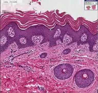 Histopatologia skóry - Rybia łuska lamelarna