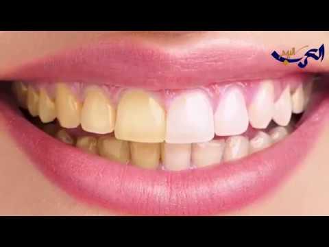 العرب اليوم - شاهد: وسائل بسيطة لحماية أسنانك من التسوس