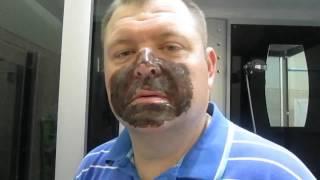 тестирование масок от черных точек с сайта AliExpress