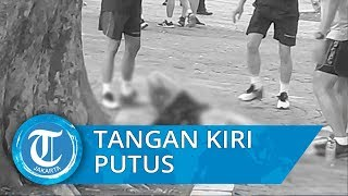 Tangan Kiri Anggota TNI Korban Ledakan Monas Putus, Mayjen Eko, Dia Pegang Granat Asap