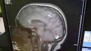 Интеграция МИС Авиценна с МРТ,  КТ,  Рентген, УЗИ аппарами