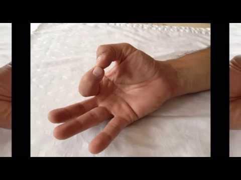 Gyógyszerek a vállízületek ízületi gyulladásának kezelésére