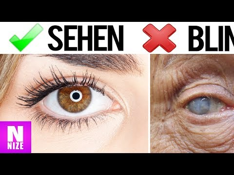 Hypertension Säcke unter den Augen