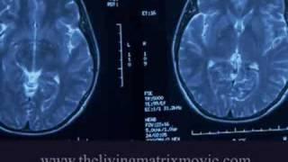 The Living Matrix (2009) Video