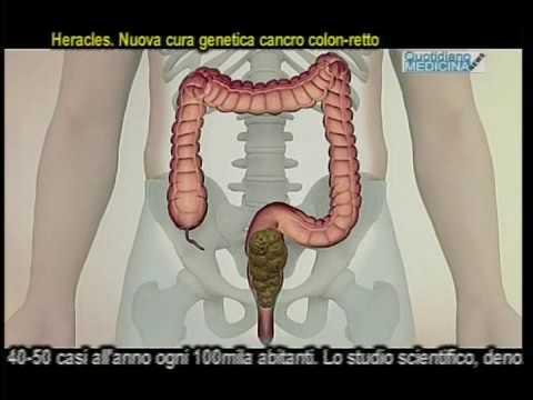 Calcificazioni nei trattamenti della prostata