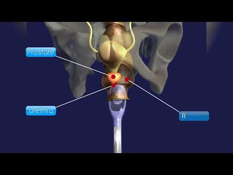 Différence entre Omnicom et Prostamol