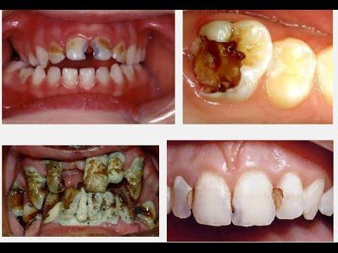 Zahnfüllung - Amalgam, Kunststoff, Gold, Keramik, Zement