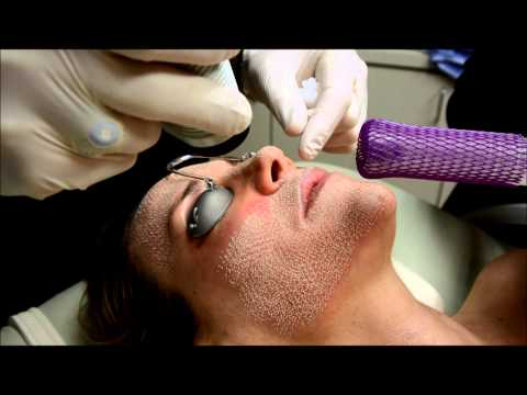 Birmingham Co2 Laser Skin Resurfacing & IPL Photorejuvenation