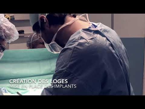 Implant à la poitrine nadhère pas