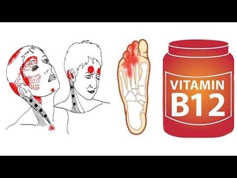 Anzeichen eines Vitamin B12 Mangels solltest du NICHT ignorieren!