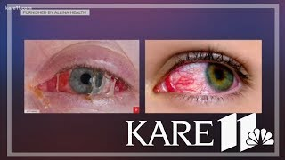Red, itchy eyes: Is it pink eye or something else?