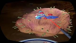 Фармацевтическая VR программа. Действие препарата Адцетрис компании Takeda Oncology