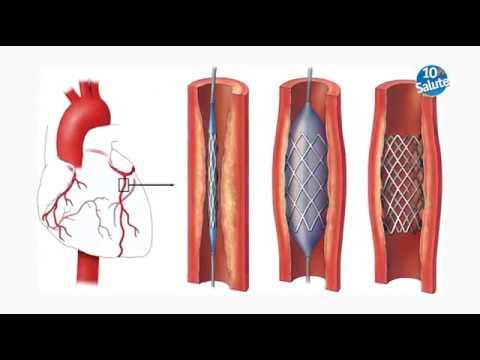 Trattamento di varicosity di medicina e analoghi
