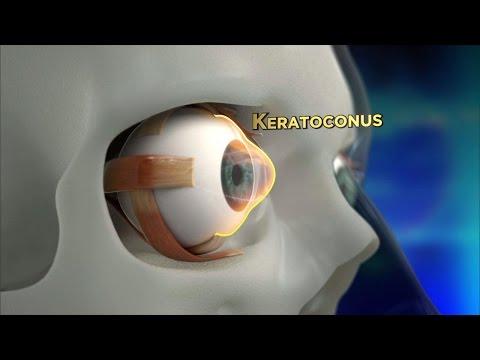 Betegségek és a látás kezelése