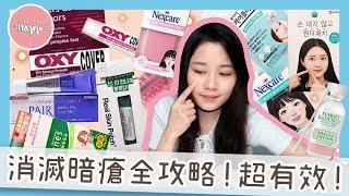 韓國暗瘡貼分享 X 消滅暗瘡三重奏💥|MAGIGU ▴ 麻芝菇