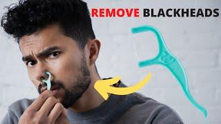 5 Skin Care Tricks For PERFECT Skin!