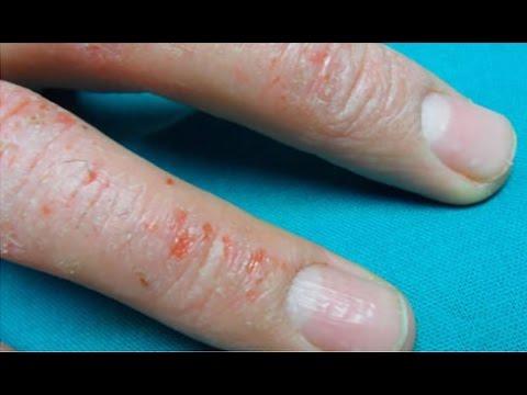 Las manchas de pigmento y la psoriasis