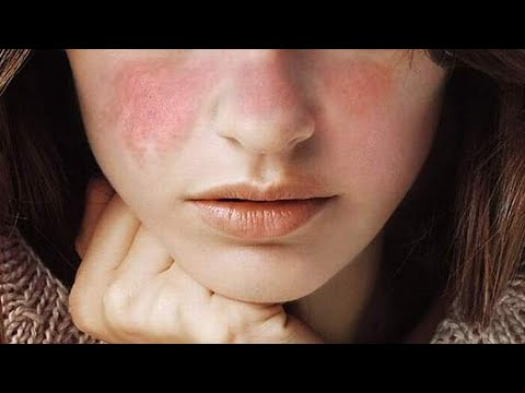Video What is Lupus - Symptoms, Treatments, Cuases, Preventions