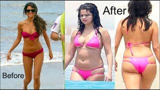 Selena Gomez Weight Gain Explained