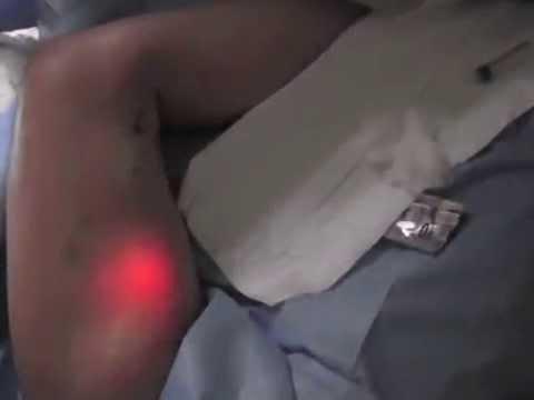 หลอดเลือดดำที่ขาหลังคลอดก่อนและหลังภาพถ่าย