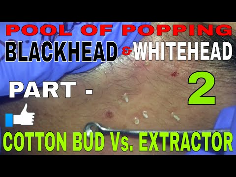 Blackheads Hidden Under the Surface!