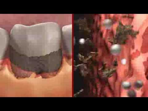 Definitie artrita este o boala cronica