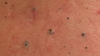 How to remove blackheads on back|Remove acne on back.