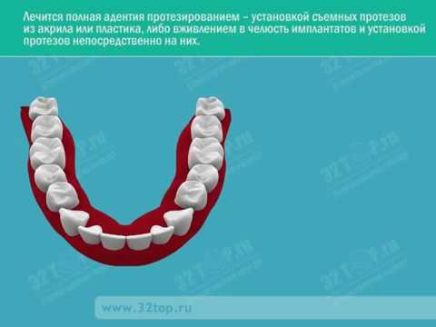 Полная адентия - отсутствие зубов: последствия, способы лечение