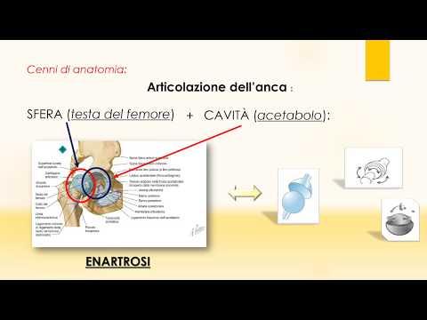Artrosi dellarticolazione della caviglia, la medicina tradizionale