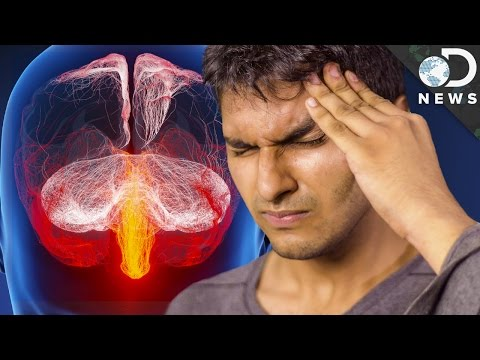 Video Why Do We Get Migraines?
