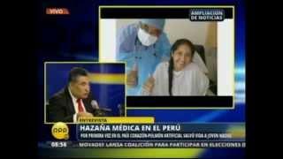 RPP 15/01/2015 - Por primera vez en el País Corazón-Pulmón artificial salvo vida a joven madre