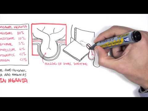 Galleggiante ernia del rachide cervicale