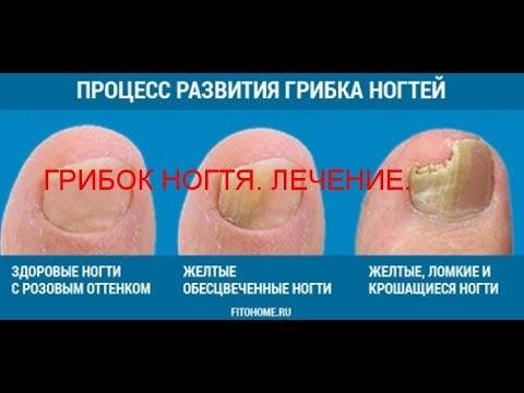 Wovon, die Behandlung gribka der Nägel zu beginnen