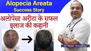 Alopecia Areata Treatment | अलोपेसा अरीटा का इलाज | गंजापन का इलाज | Best Homeopathic Doctor