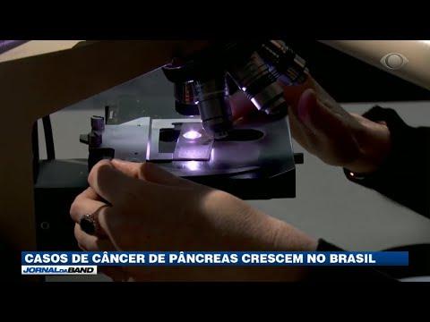 Casos de câncer de pâncreas crescem no Brasil