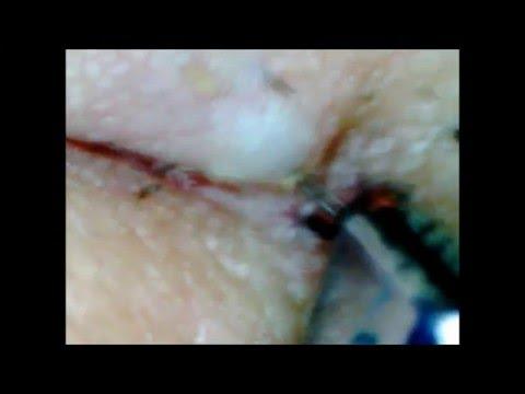 Wie atopitscheski die Hautentzündung im Kopf zu heilen