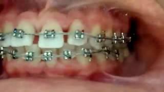 Alt Ve üst Dişlere Tel Takılması (Hızlandırılmış çekim)
