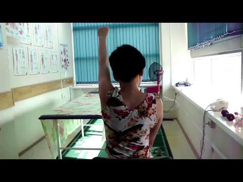 Импинжмент синдром плечевого сустава Адгезивный капсулит