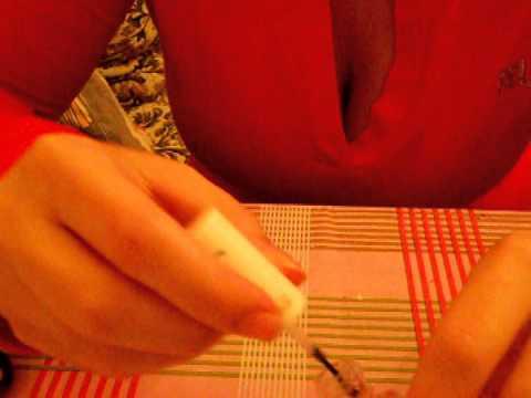 Il trattamento di un fungo di unghie di SPb costato