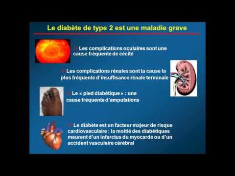 La valeur acceptable de sucre pour les diabétiques