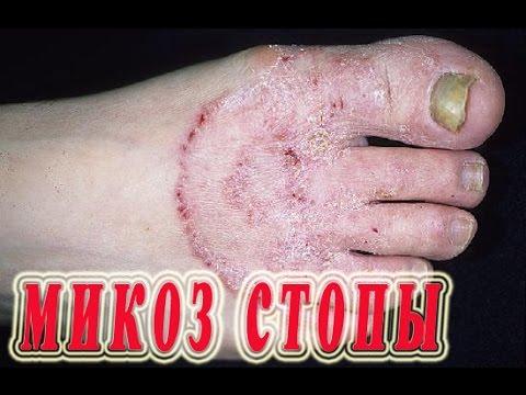 Gribok die Füsse und gribok der Nägel ein und auch