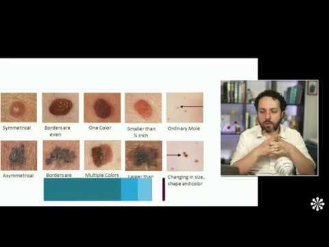 Suplimente de detoxifiere dietetică