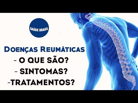 Artroza traumatică a tratamentului articulației gleznei