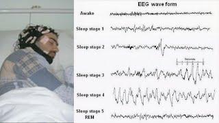Sleep Inflammation and Metabolism: Sleep-worthy Connections!