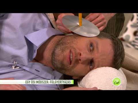 Papillomavírus és gyógyítás