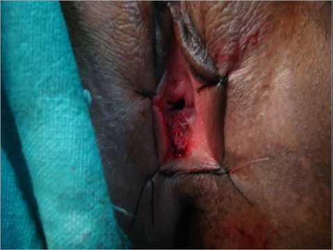 Revirginity Surgery in Delhi By Dr Tulla, Hymen Restoration Surgery Delhi, Best  Hymenoplasty Delhi