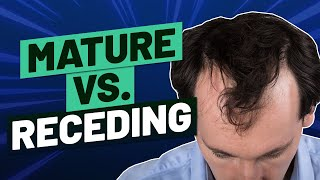 Mature Hairline Versus Receding Hairline - How To Tell The Difference