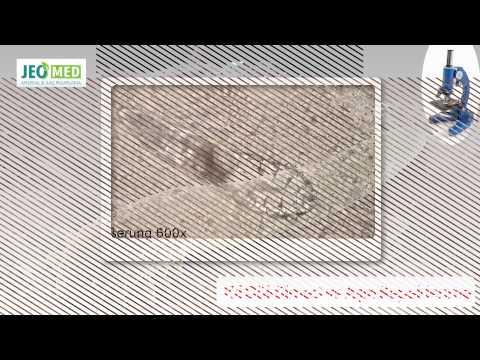 Tratamentul alăptării cu viermi rotunzi
